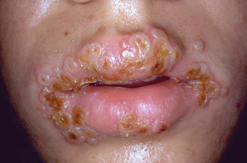 herpes-mouth.jpg